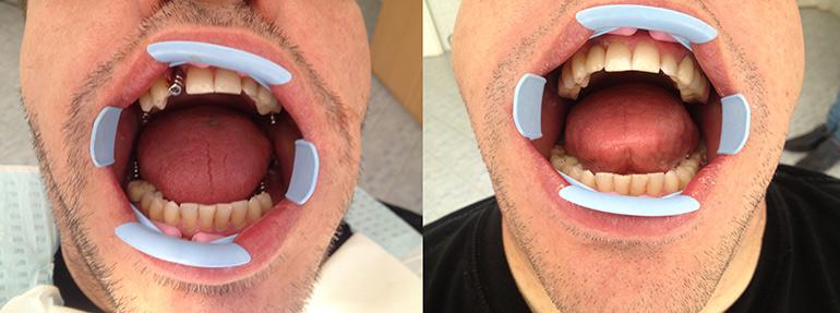 Фото: Улучшается эстетический вид зуба