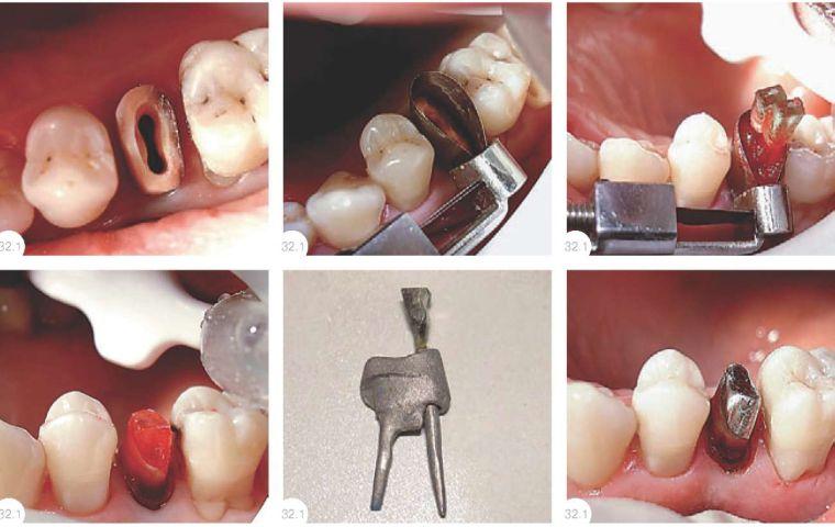 Не попали в канал при установке вкладки на зубы