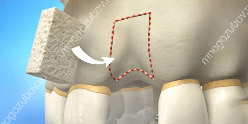 костная пластика при убывании кости