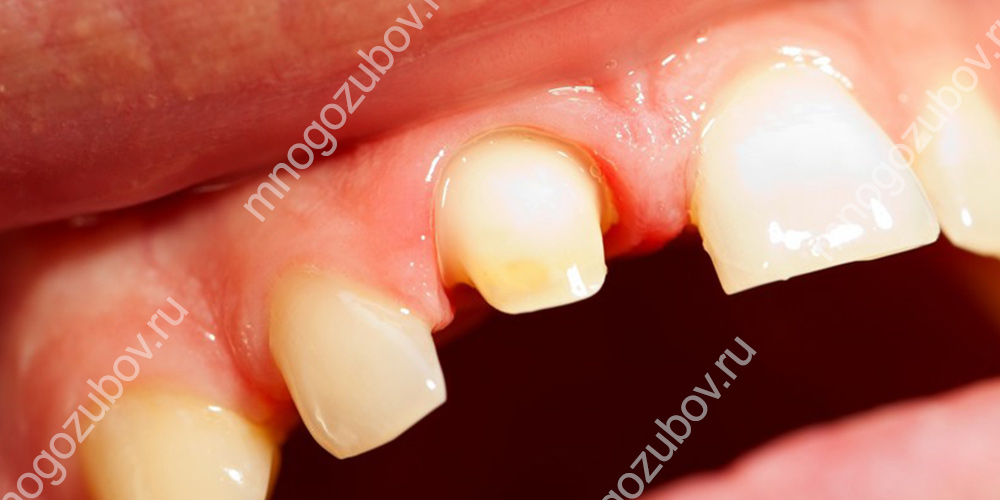 Показания к установке зубных коронок