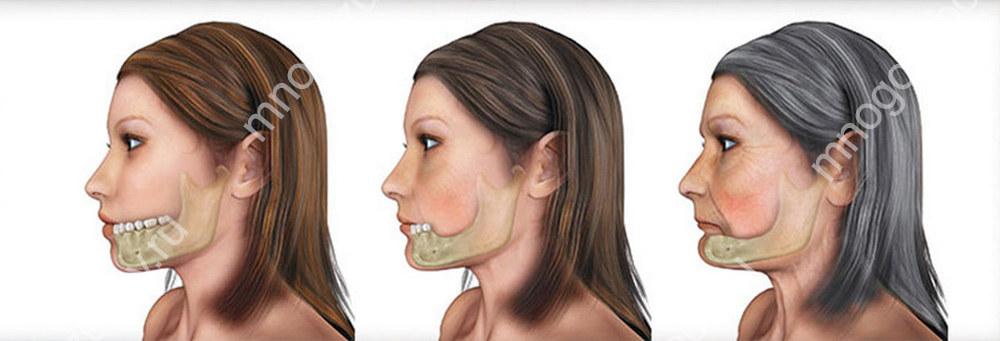 убывание костной ткани челюсти