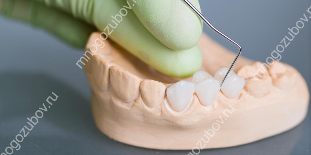 Керамокомпозитный зубной мост