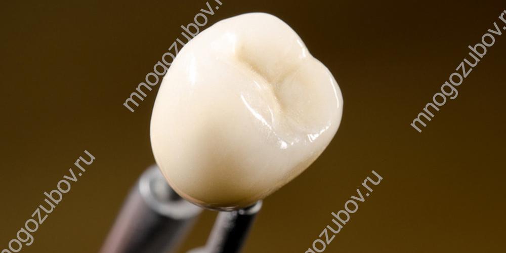 Как выглядит пластмассовая зубная коронка