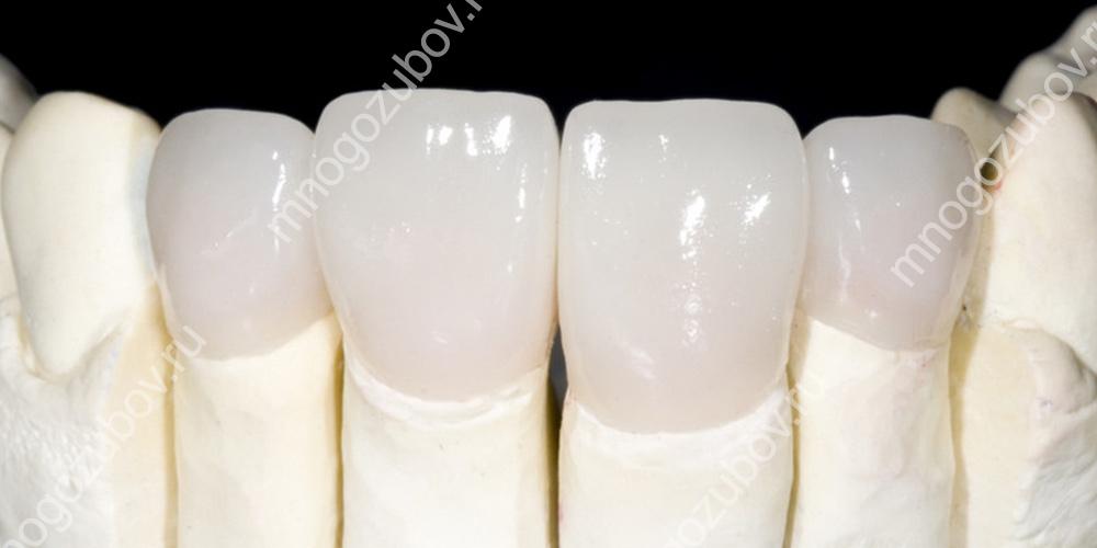 Протез на зуб из диоксида циркония