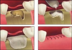 Фото: Костная пластика в стоматологии