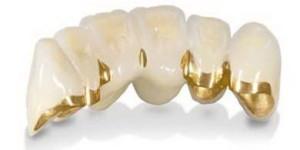 Как снимают зубной мост
