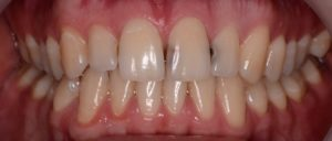 Что делать если появился кариес зубов
