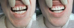 Фото: Зубы до и после