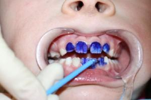 Фото: Серебрение зубов