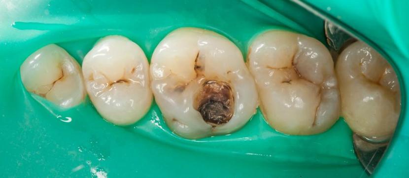 Проявление глубокого кариеса зубов