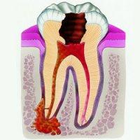 Воспаление молочного зуба у ребенка