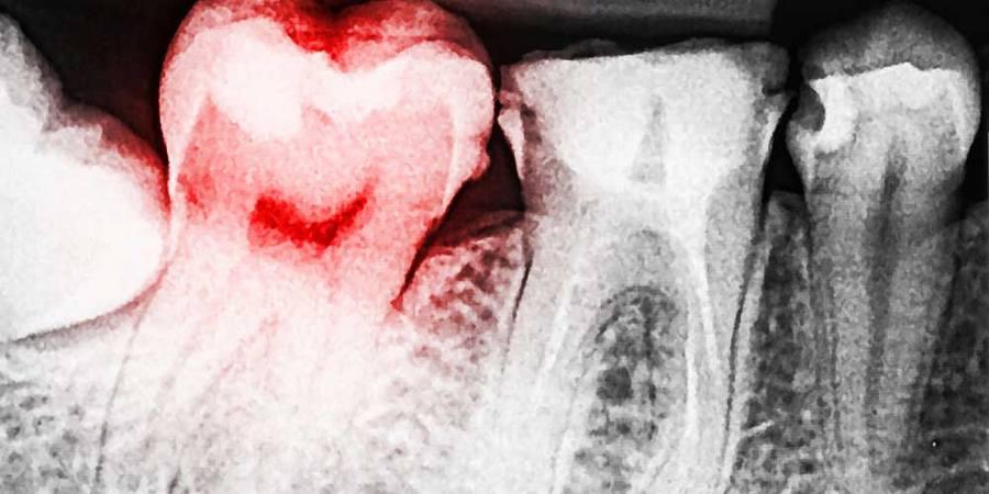 Обнаружение глубокого кариеса в стоматологии