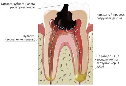Острый гнойный периодонтит и его лечение