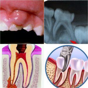Фото: Периодонтит молочных зубов у детей