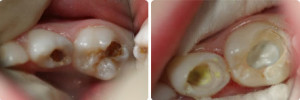 Фото: Пульпит молочных зубов у детей