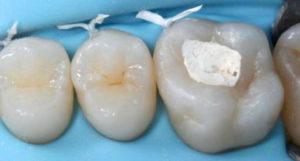 Что делать, если под временной пломбой болит зуб