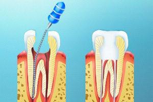 Пломбирование каналов зубов гуттаперчей