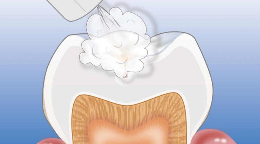 Почему болит зуб после лечения каналов