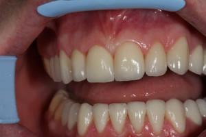 Фото: Коронки на передние зубы