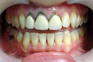Фото: Протезирование передних верхних зубов