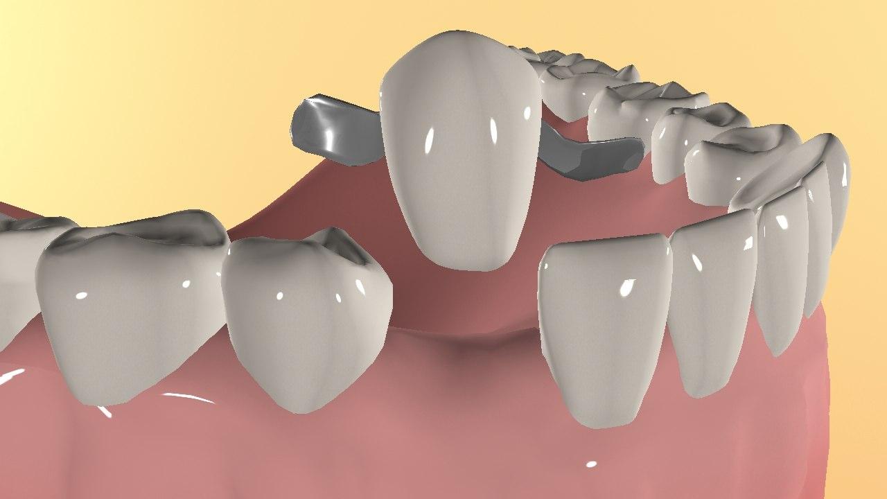 Адгезивный мостовидный протез обзор методики протезирования