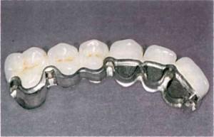 Фото: Мостовидный протез из металлокерамики
