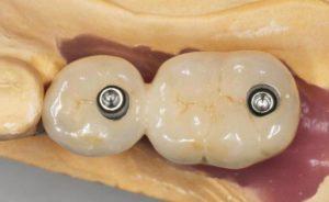 Фото: Циркониевые коронки на импланты