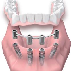Протезирование на мини-имплантах — быстрое восстановление зубного ряда