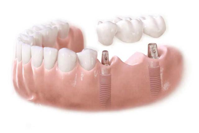 Мостовидный протез на имплантах — надежность фиксации и защита зубов