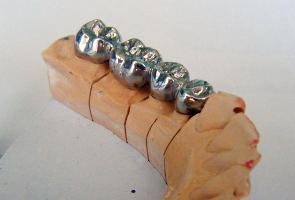Фото: Цельнолитые мостовидные протезы