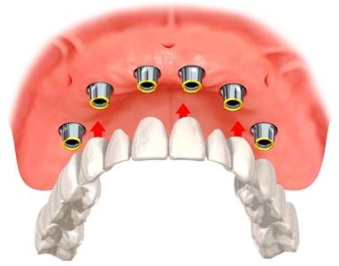 Съемные протезы на имплантах — надежная фиксация зубного ряда, обзор цен