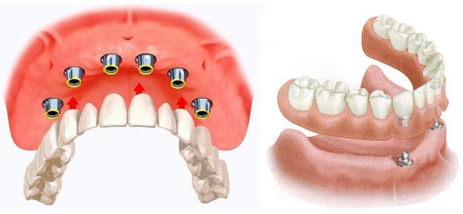 Условно-съемное протезирование на имплантатах — комфортные зубные конструкции