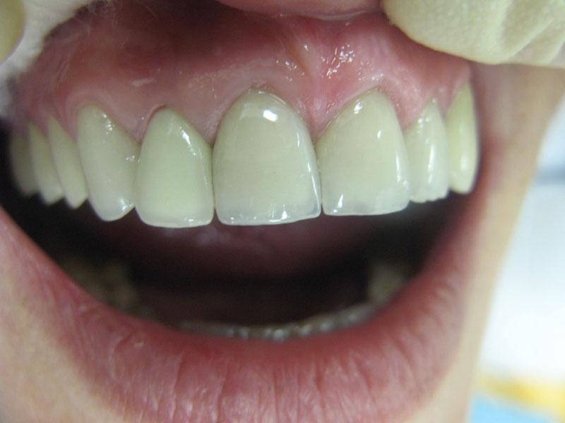 Циркониевые коронки на импланты — аналог настоящих зубов, обзор цен