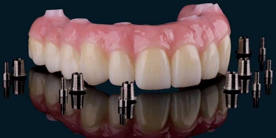 Съемные и несъемные зубные протезы при частичном отсутствии зубов, какой вид протезирования лучше