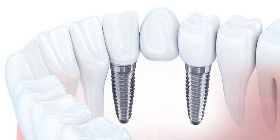 Имплантация зуба под мостом