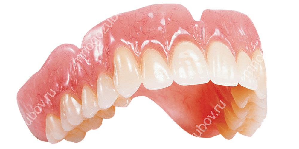 Фото: классический съемный пластиночный зубной протез