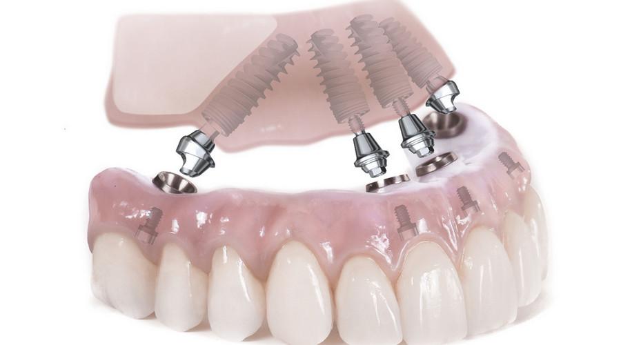 внешний вид условно съемных протезов на имплантах