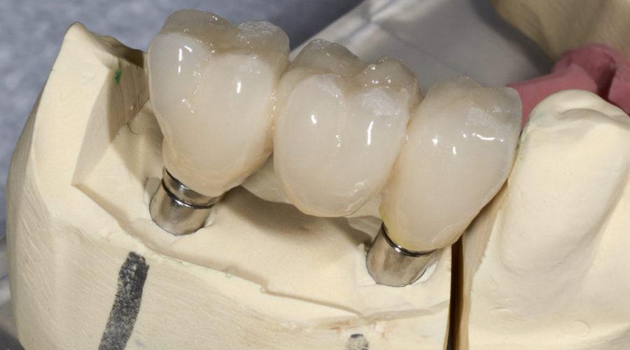 металлокерамический зубной мост на имплантах