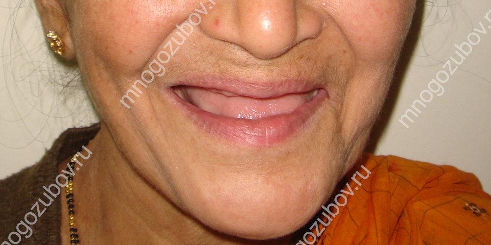 Какие показания для установки съемных зубных протезов