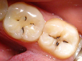 Острый кариес — стремительное поражение зубов