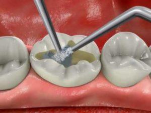 Фото: Пломбирование зубов
