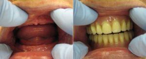 Установка зубных протезов при полном отсутствии зубов