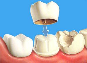 обточенные зубы под виниры фото