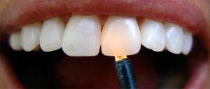 Фото: Зубы из диоксида циркония