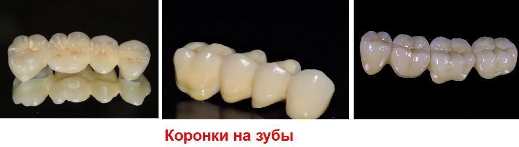 Зубные коронки виды