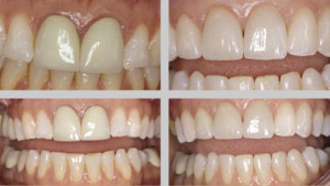 Какие бывают коронки на зубы — виды зубных изделий, цены, фото