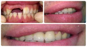 Фото: Протезы на передние зубы