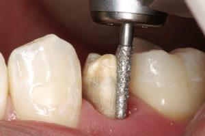 Препарирование зуба под металлокерамическую коронку — видео про обточку