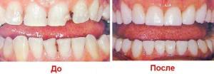 Фото: Наращивание зубов