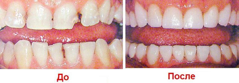 Можно ли нарастить зуб пломбой